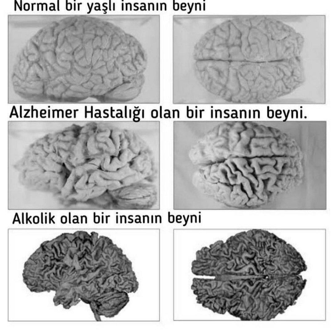 alkol-kullanan-icki-icen-insan-beyni